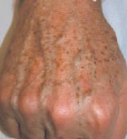 La crème la prophylaxie de la pigmentation pour la personne