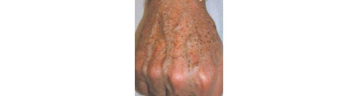 Les moyens naturels blanchissant pour la peau