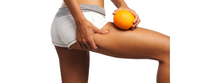 La cellulite ou peau d'orange : origine et traitement
