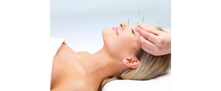 Lifting par l'acupuncture ou aculifting